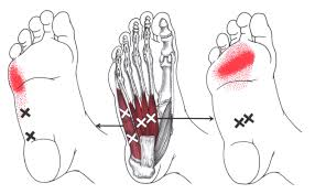 Reduce Foot Pain by working these Trigger Point Areas in the Foot