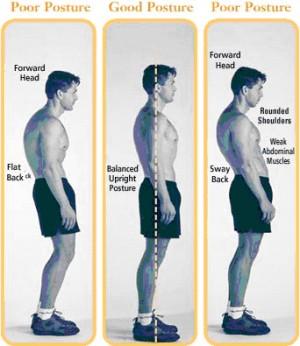 Forward Head Posture Treat Yourself Naturally